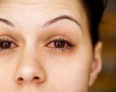 Phòng tránh khô mắt qua chế độ ăn uống và sinh hoạt
